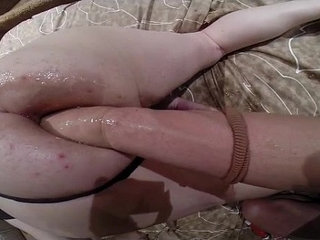 anal top